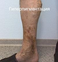 Лечение варикоза в серпухове