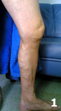 Препараты для лечения варикоза нижних конечностей